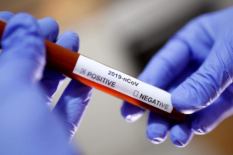 सुदूरपश्चिममा एकैपटक ३ जना कोरोना संक्रमित भेटिए, स्थानीयमा पहिलो पटक संक्रमण देखियो